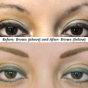 Before and After Brow Procedure