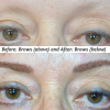 before and after procedure brows