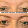 brows procedure before and after