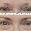 Before and After Brows Procedure