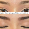 Before After Brows Procedure