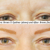 Before and After Brows and Eyeliner Procedure