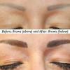 before and after brow correction